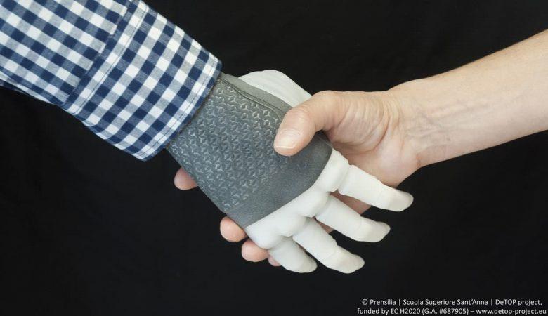 Svezia: impiantata la prima mano robotica permanente