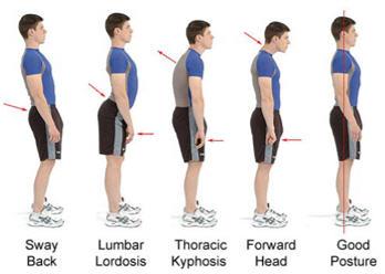 I consigli dello specialista su alterazioni e atteggiamenti posturali